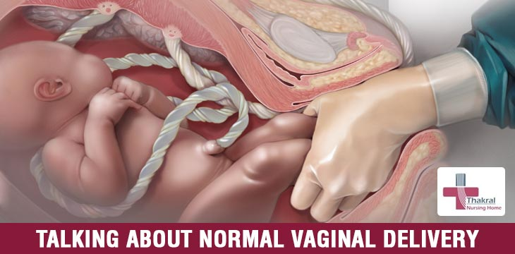 Talking About Normal Vaginal Delivery