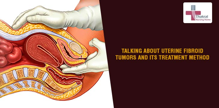 Talking About Uterine Fibroid Tumors And Its Treatment Method